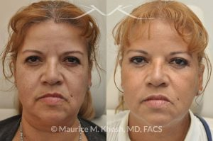 Photo of a patient before and after a procedure. Botox for frown lines, Restylane filler injection of the cheeks