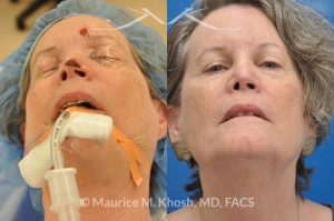 Photo of a patient before and after a procedure. Mohs reconstruction of forehead