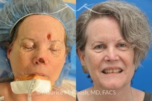 Photo of a patient before and after a procedure. Mohs reconstruction of nose
