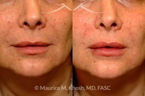 Photo of a patient before and after a procedure. Lip enhancement with Juvaderm