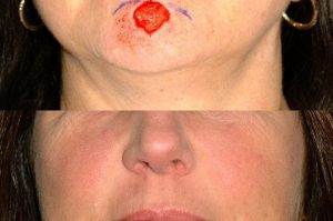 Photo of a patient before and after a procedure. Chin repair utilizing the O T advancement technique