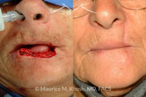 Photo of a patient before and after a procedure. Repair of 60% lower lip defect with Abbe lip switch technique