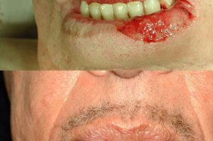 Photo of a patient before and after a procedure. Repair of lower lip defect with lining flap from inside the mouth
