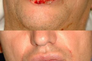 Photo of a patient before and after a procedure. Repair of 75% lower lip defect with Karapandzic flap