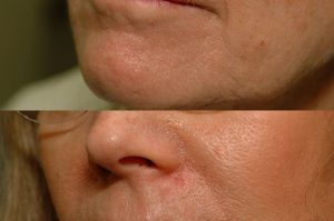 Photo of a patient before and after a procedure. Upper lip repair with advancement flaps