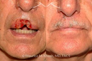 Photo of a patient before and after a procedure. Upper lip repair with bilateral davancement flaps