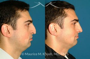 Photo of a patient before and after a procedure. Patient with cleft lip nasal deformity. Previous rhinoplasty had been unsuccessful at restoring the droopy tip and asymmetric nasal tip. Revision rhinoplasty via an open approach, utilizing cartilage grafts successfully elevated the nasal tip and achieved tip symmetry.