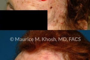 Photo of a patient before and after a procedure. Repair of large forehead defect