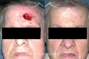 Photo of a patient before and after a procedure. Repair of left forehead defect
