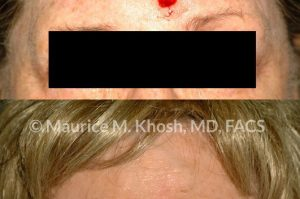 Photo of a patient before and after a procedure. Repair of mid forehead defect