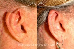 Photo of a patient before and after a procedure. Advancement flap for repair of rim defect
