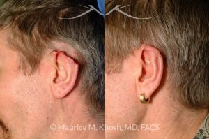 Photo of a patient before and after a procedure. Skin flap form posterior aspect of ear to repair large rim defect