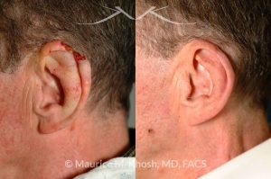 Photo of a patient before and after a procedure. Repair of helical rim with advancement flap
