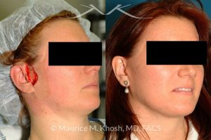 Photo of a patient before and after a procedure. Lateral cheek Mohs defect repaired with a facelift flap