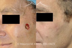 Photo of a patient before and after a procedure. Medium sized Mohs defect of cheek repaired with local flap
