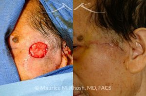 Photo of a patient before and after a procedure. Upper cheek and temple reconstruction with mustarde advancement flap
