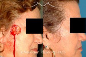 Photo of a patient before and after a procedure. Mohs cancer defect of the face - Upper cheek & temple reconstruction with mustarde cheek advancement.