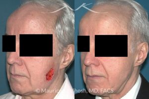 Photo of a patient before and after a procedure. Mohs defect of the lower cheek with a transposition flap