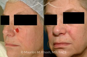 Photo of a patient before and after a procedure. Mohs defect of the medial cheek repaired with a local advancement flap