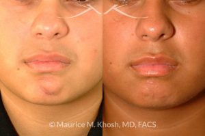 Photo of a patient before and after a procedure. Scar revision of the chin