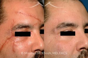 Photo of a patient before and after a procedure. Scar revision of forehad and upper face