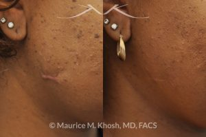 Photo of a patient before and after a procedure. Scar revision of right cheek