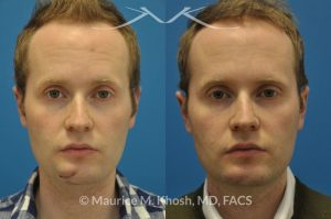 Photo of a patient before and after a procedure. Scar revision of the chin due to traumatic chin laceration