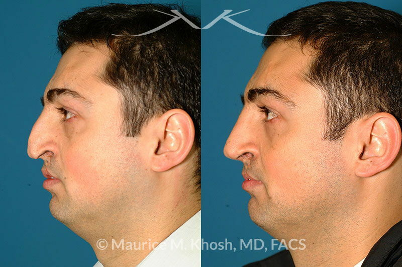 New York Facial Plastic Surgery Revision Rhinoplasty Before