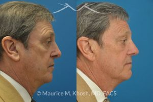 Photo of a patient before and after a procedure. Nasal valve stenosis