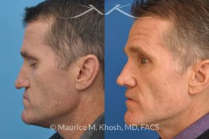 Photo of a patient before and after a procedure. Nasal valve repair with rib cartilage graft
