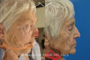 Photo of a patient before and after a procedure. Nose Mohs skin cancer repair, utilizing forehead flap and ear cartilage graft