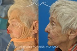Photo of a patient before and after a procedure. Nose Moh's skin cancer repair, utilizing forehead flap and ear cartilage graft