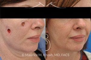 Photo of a patient before and after a procedure. Repair of cheek basal cell skin cancer defect after Mohs excision