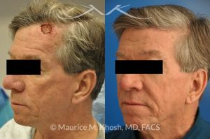 Photo of a patient before and after a procedure. Repair of forehead basal cell skin cancer defect after Mohs excision