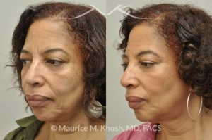 Photo of a patient before and after a procedure. Botox injection of frown lines and the chin, Restylane treatment of the cheeks and marionette lines