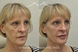 Photo of a patient before and after a procedure. Juavderm facial filler injection of cheeks, lips and orbital hollows