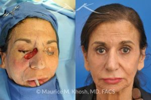 Photo of a patient before and after a procedure. Repair of squamous cell skin cancer of nose and lower eyelid with forehead flap