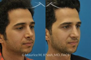 Photo of a patient before and after a procedure. Previous rhinoplasty in this young man had been a failure. The tip was raised too high, the nose was too short, and the tip was pinched. Revision rhinoplasty via the open approach successfully addressed the abnormalities and rendered the nose more aesthetic and natural in its appearance.