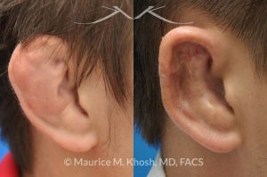 Photo of a patient before and after a procedure. Repair of Cauliflower Ear Deformity, Wrestler's Ear Deformity