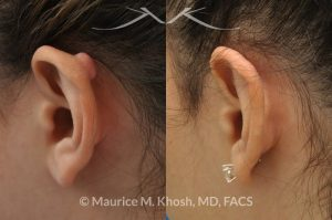 Photo of a patient before and after a procedure. Excison and repair of keloid on the upper part of the ear (auricle)