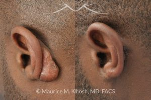 Photo of a patient before and after a procedure. Keloid scar of left ear (auricle), excision and repair of ear keloid