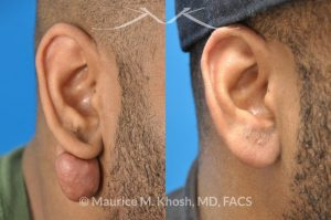 Photo of a patient before and after a procedure. Keloid scar removal right earlobe