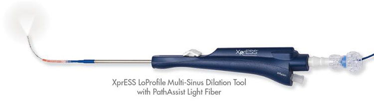 XprESS LoProfile Multi-Sinus Dilation Tool with PathAssist Light Fiber