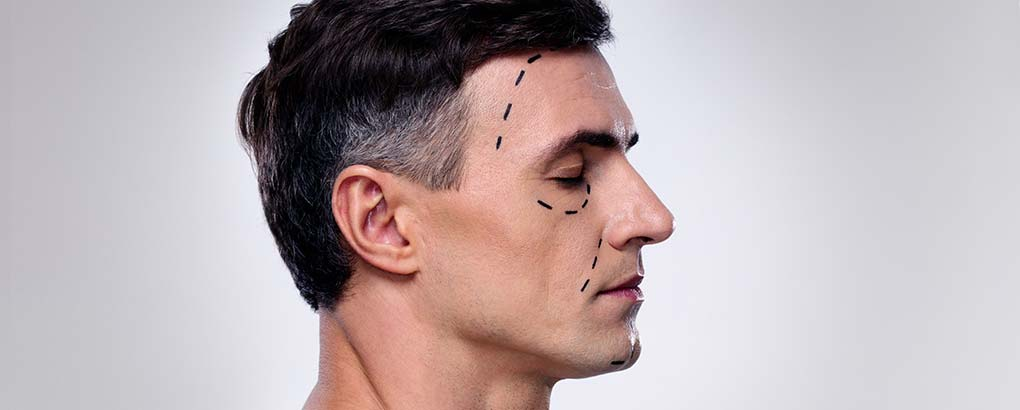 Dashed black lines on a male profile - preparing for surgery.