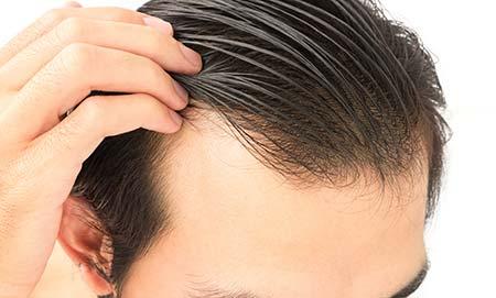 Male scalp.