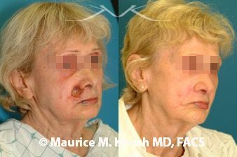 Skin defect at junction of the cheek and lip removed by Mohs surgery