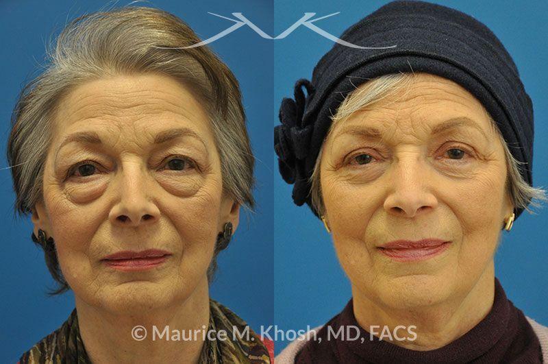 Eyelid Surgery New York, NY