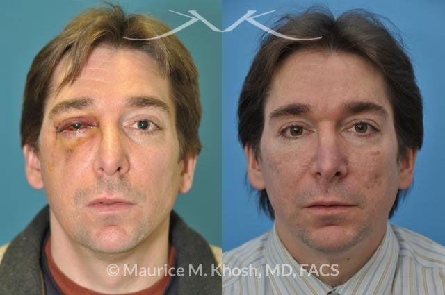 Facial Facture Repair New York, NY