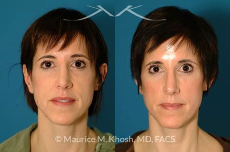 Simply facial fat implants topic Something