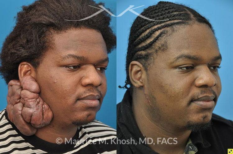 Keloid Scar Treatment New York, NY
